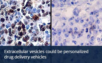 Extracellular vesicles could be personalized drug delivery vehicles